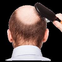 alopecia 200x200